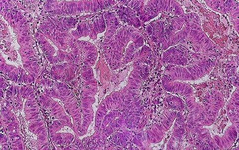 bowel_cancer_cells.jpg